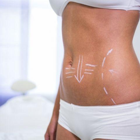 liposuction-ile-ilgili-sikca-sorulan-sorular